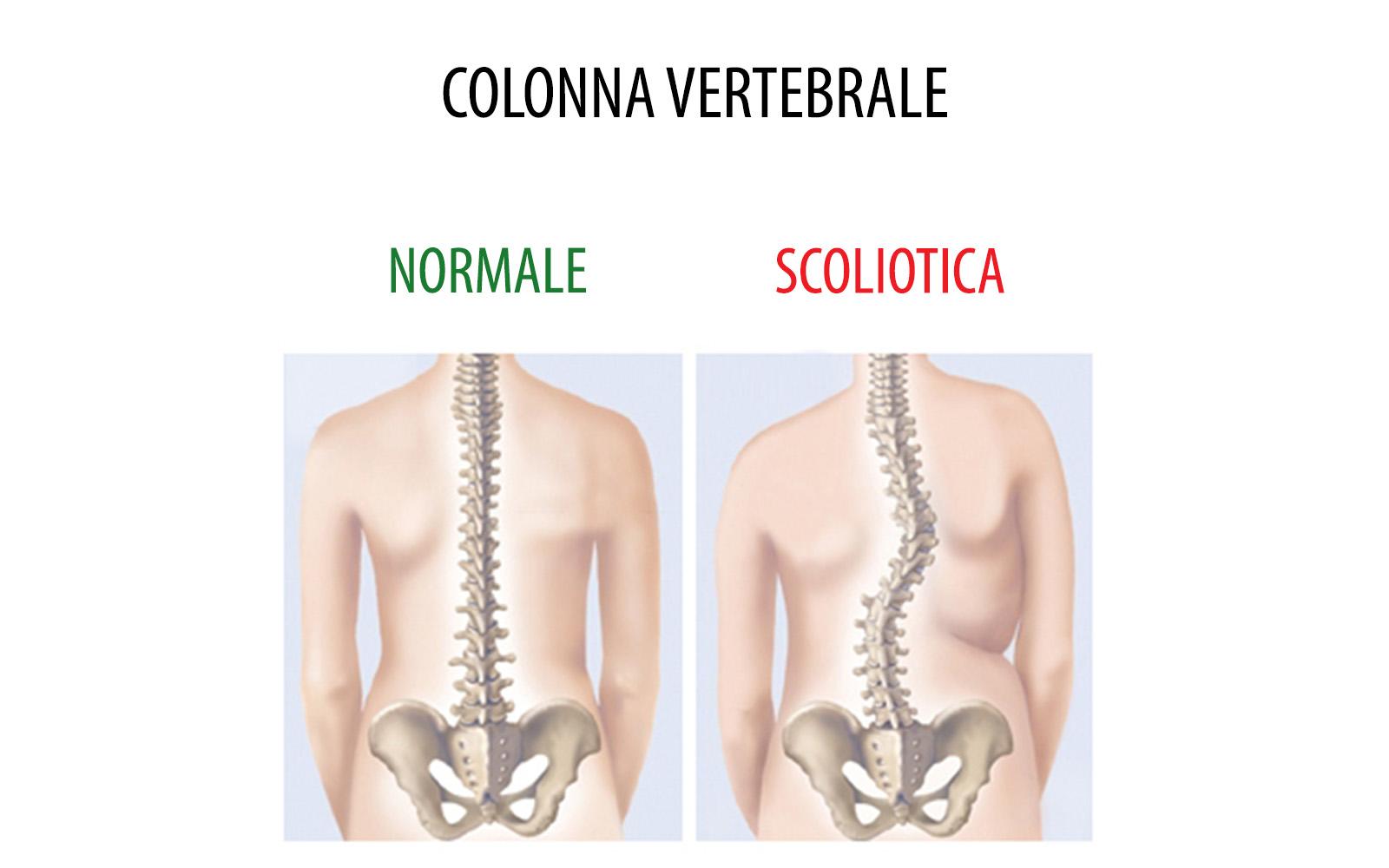 Preferenza Scoliosi dorsale: esercizi, cura e postura. | Fitnessway HR79