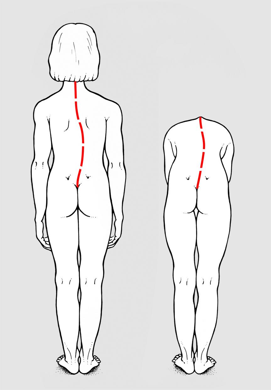 Esercizi scoliosi: i migliori per rinforzare i muscoli dorsali.