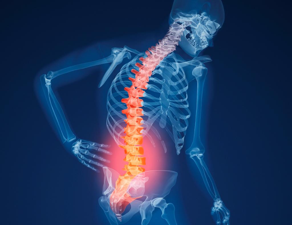 Prevenzione dell'osteoporosi con il pilates